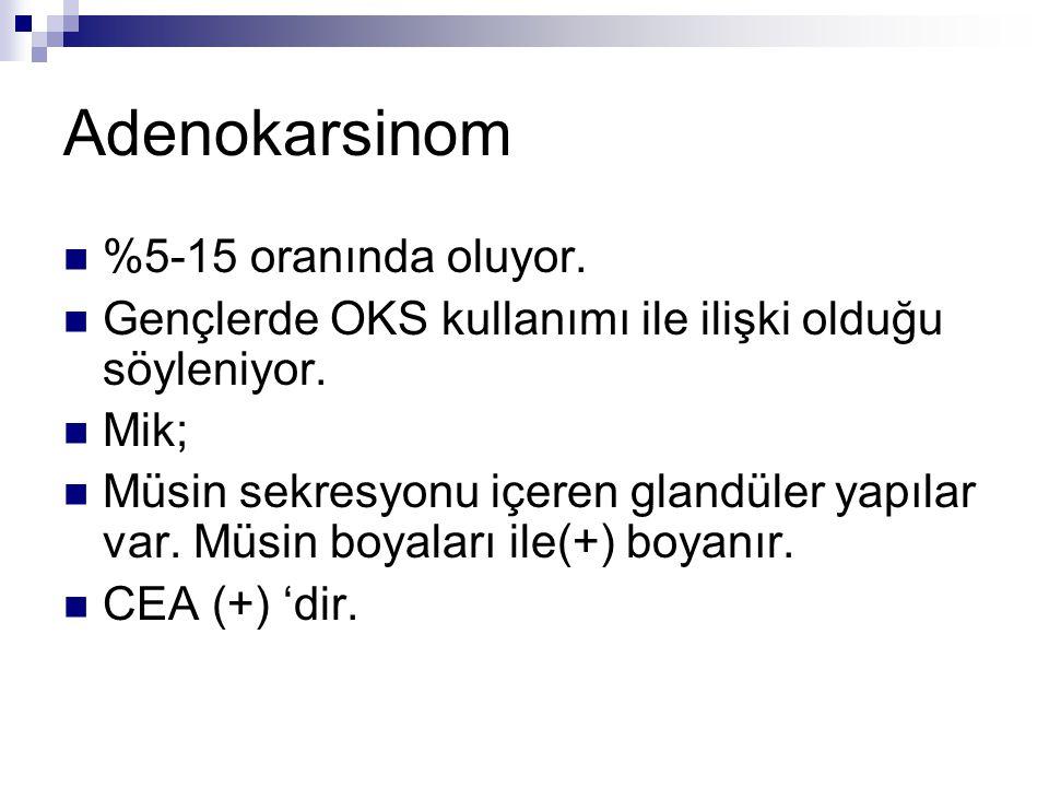Adenokarsinom %5-15 oranında oluyor. Gençlerde OKS kullanımı ile ilişki olduğu söyleniyor. Mik; Müsin sekresyonu içeren glandüler yapılar var. Müsin b