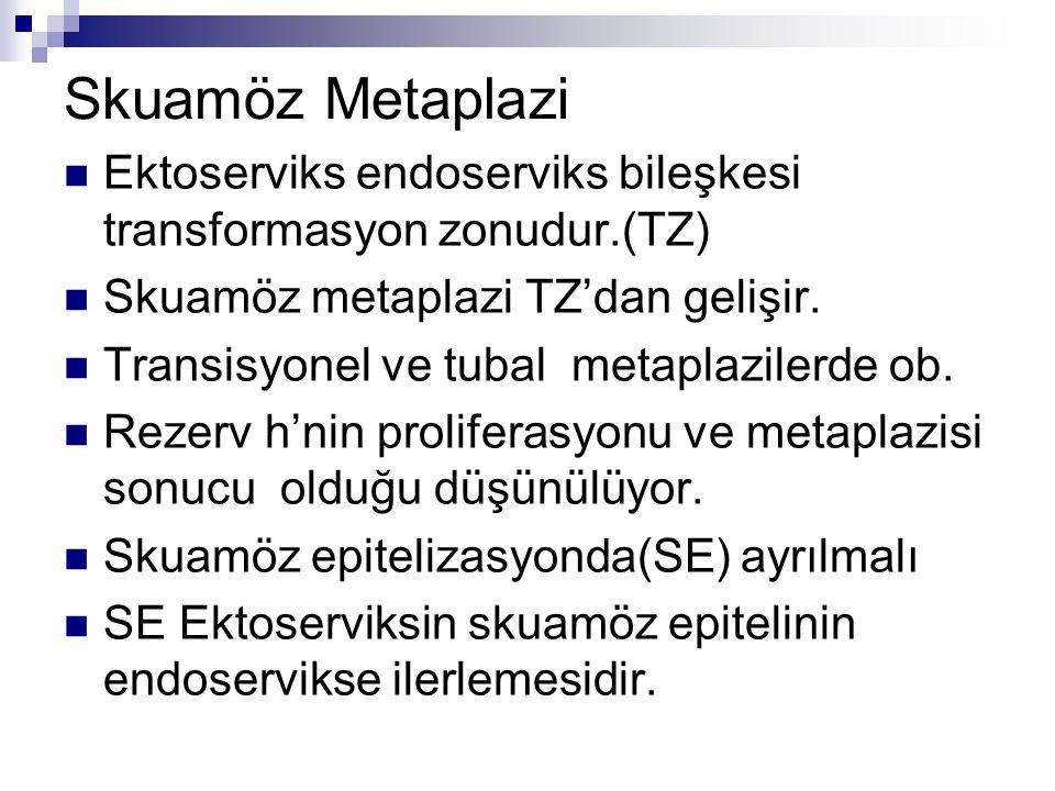 Skuamöz Metaplazi Ektoserviks endoserviks bileşkesi transformasyon zonudur.(TZ) Skuamöz metaplazi TZ'dan gelişir. Transisyonel ve tubal metaplazilerde