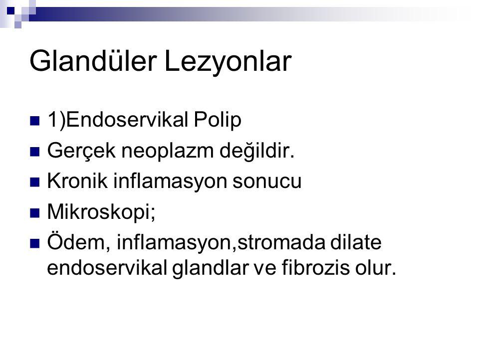 Glandüler Lezyonlar 1)Endoservikal Polip Gerçek neoplazm değildir. Kronik inflamasyon sonucu Mikroskopi; Ödem, inflamasyon,stromada dilate endoservika