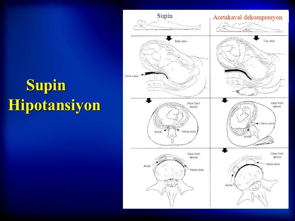 5 Maternal Fizyoloji –Epidural venöz dolgunluk –Epidural aralık volümünün azalması ve/veya –Lokal anesteziklere sinirlerin duyarlığında artma –Lomber