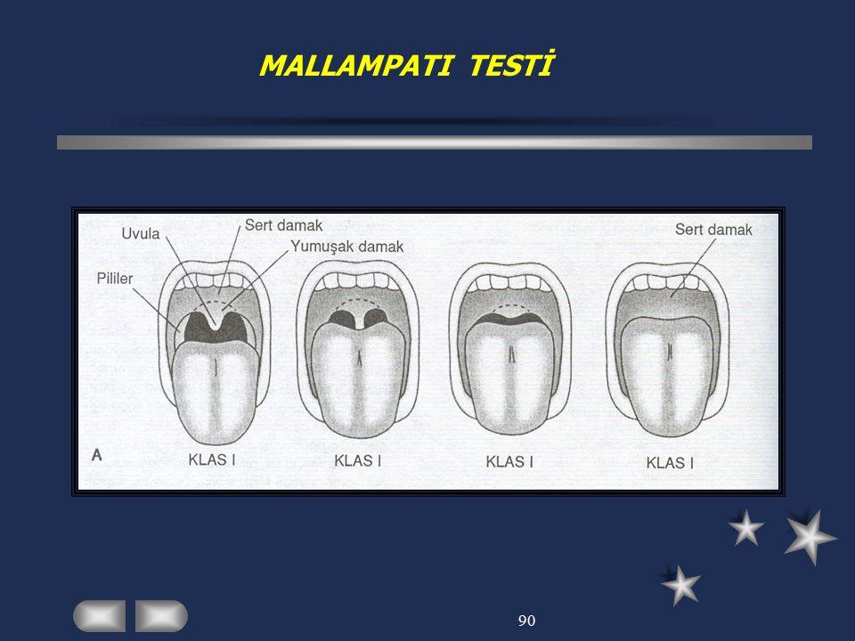 90 MALLAMPATI TESTİ