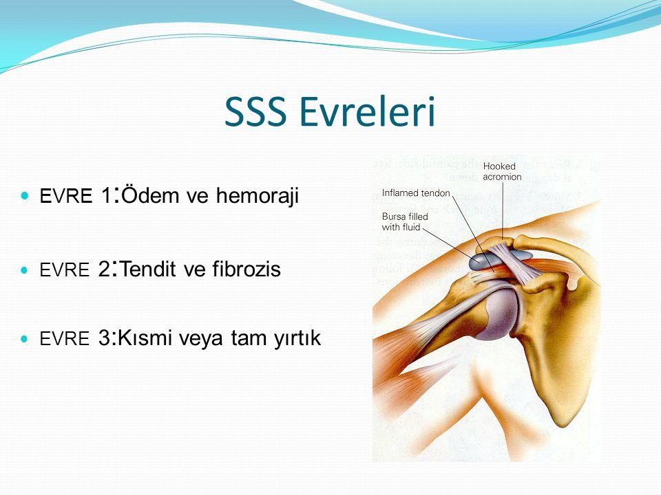 SSS Evreleri EVRE 1 : Ödem ve hemoraji EVRE 2 : Tendit ve fibrozis EVRE 3 : Kısmi veya tam yırtık