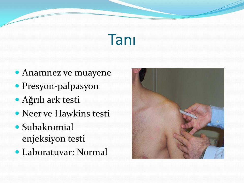 Tanı Anamnez ve muayene Presyon-palpasyon Ağrılı ark testi Neer ve Hawkins testi Subakromial enjeksiyon testi Laboratuvar: Normal