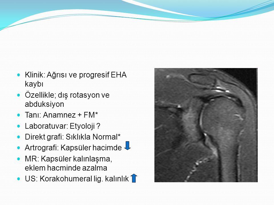 Klinik: Ağrısı ve progresif EHA kaybı Özellikle; dış rotasyon ve abduksiyon Tanı: Anamnez + FM* Laboratuvar: Etyoloji ? Direkt grafi: Sıklıkla Normal*