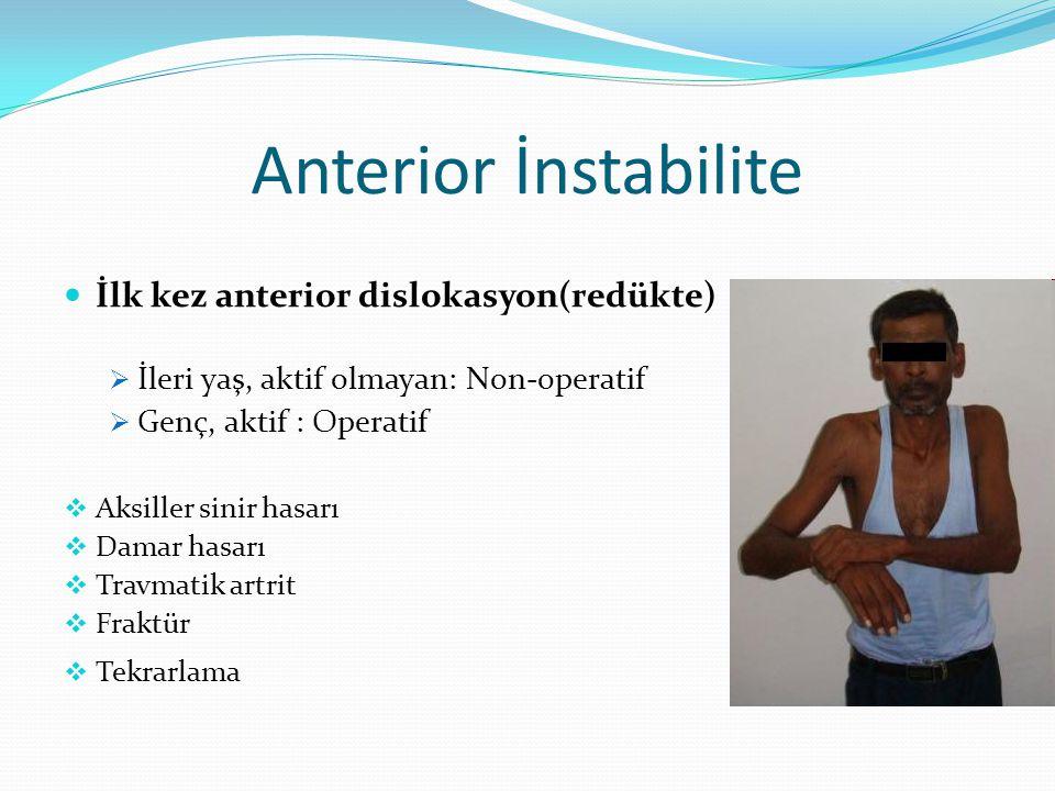 Anterior İnstabilite İlk kez anterior dislokasyon(redükte)  İleri yaş, aktif olmayan: Non-operatif  Genç, aktif : Operatif  Aksiller sinir hasarı  Damar hasarı  Travmatik artrit  Fraktür  Tekrarlama