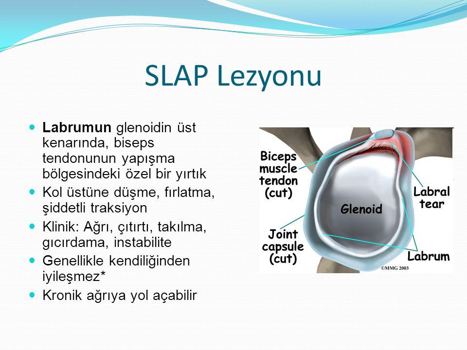 SLAP Lezyonu Labrumun glenoidin üst kenarında, biseps tendonunun yapışma bölgesindeki özel bir yırtık Kol üstüne düşme, fırlatma, şiddetli traksiyon Klinik: Ağrı, çıtırtı, takılma, gıcırdama, instabilite Genellikle kendiliğinden iyileşmez* Kronik ağrıya yol açabilir