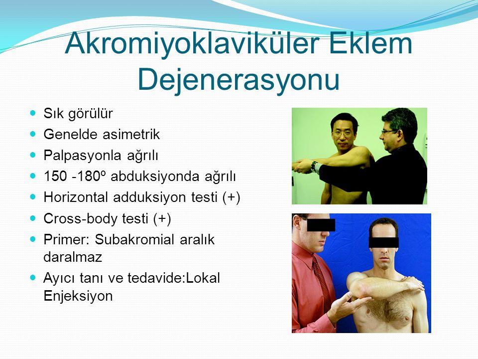 Akromiyoklaviküler Eklem Dejenerasyonu Sık görülür Genelde asimetrik Palpasyonla ağrılı 150 -180º abduksiyonda ağrılı Horizontal adduksiyon testi (+)