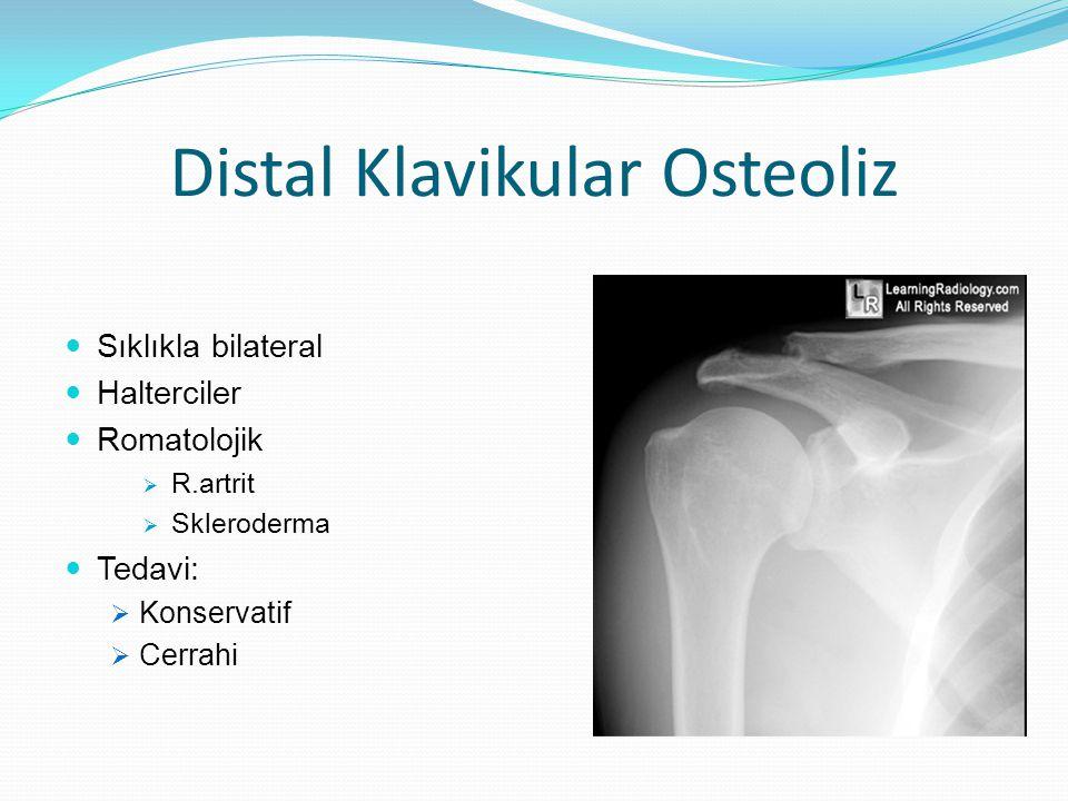 Distal Klavikular Osteoliz Sıklıkla bilateral Halterciler Romatolojik  R.artrit  Skleroderma Tedavi:  Konservatif  Cerrahi