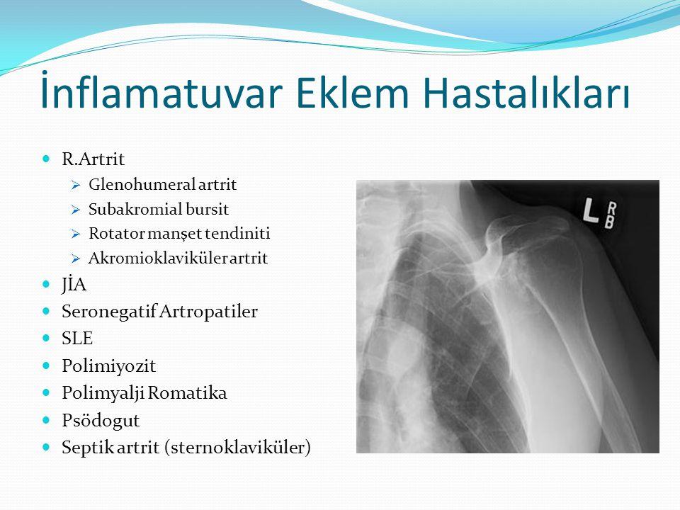 İnflamatuvar Eklem Hastalıkları R.Artrit  Glenohumeral artrit  Subakromial bursit  Rotator manşet tendiniti  Akromioklaviküler artrit JİA Seronegatif Artropatiler SLE Polimiyozit Polimyalji Romatika Psödogut Septik artrit (sternoklaviküler)