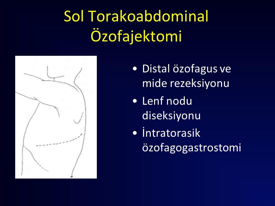 Sol Torakoabdominal Özofajektomi Distal özofagus ve mide rezeksiyonu Lenf nodu diseksiyonu İntratorasik özofagogastrostomi