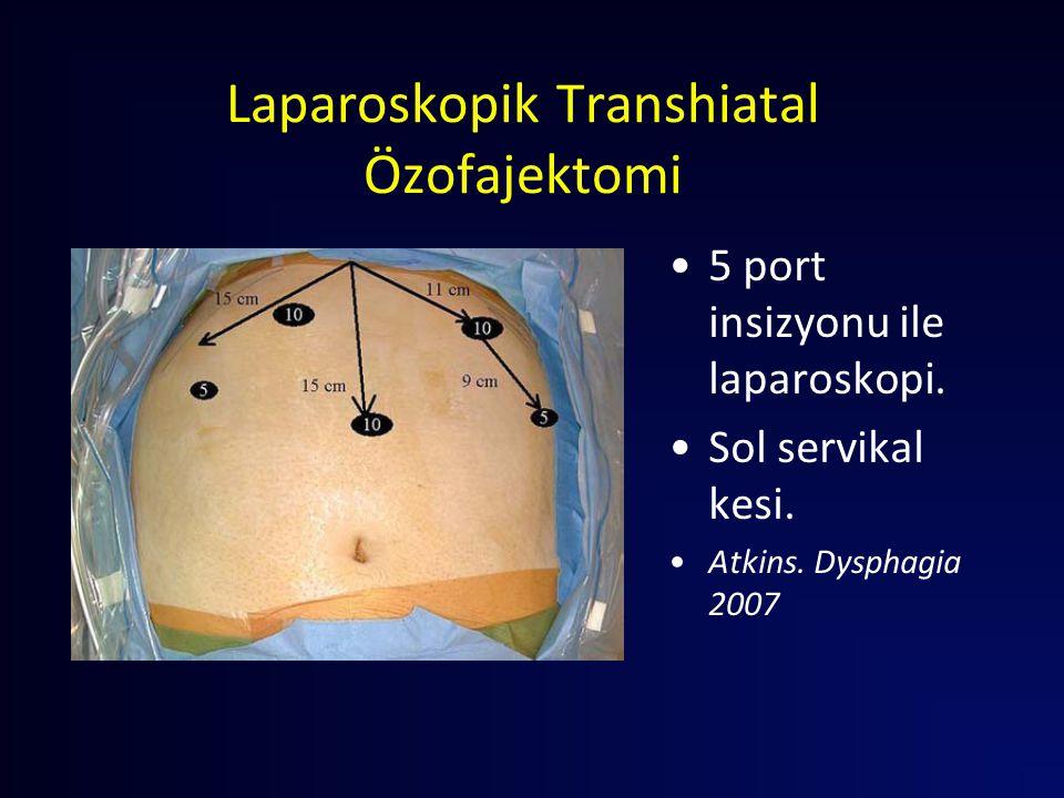 Laparoskopik Transhiatal Özofajektomi 5 port insizyonu ile laparoskopi. Sol servikal kesi. Atkins. Dysphagia 2007