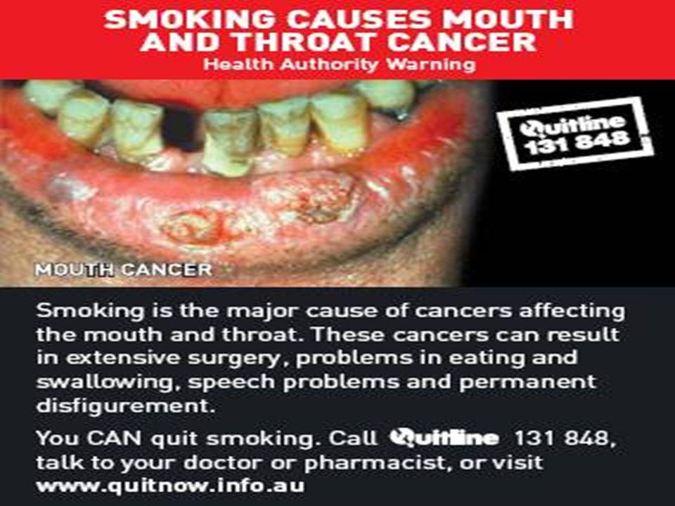 Sigara konusunda bazı gerçekler Sigara içenlerin yarısı sigaraya bağlı nedenle ölür Ölümlerin çoğu erken ölümdür (ort.