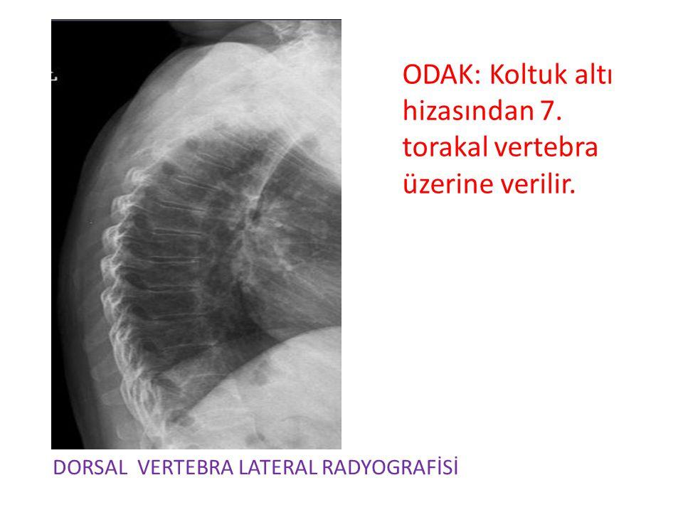 ODAK: Koltuk altı hizasından 7. torakal vertebra üzerine verilir. DORSAL VERTEBRA LATERAL RADYOGRAFİSİ