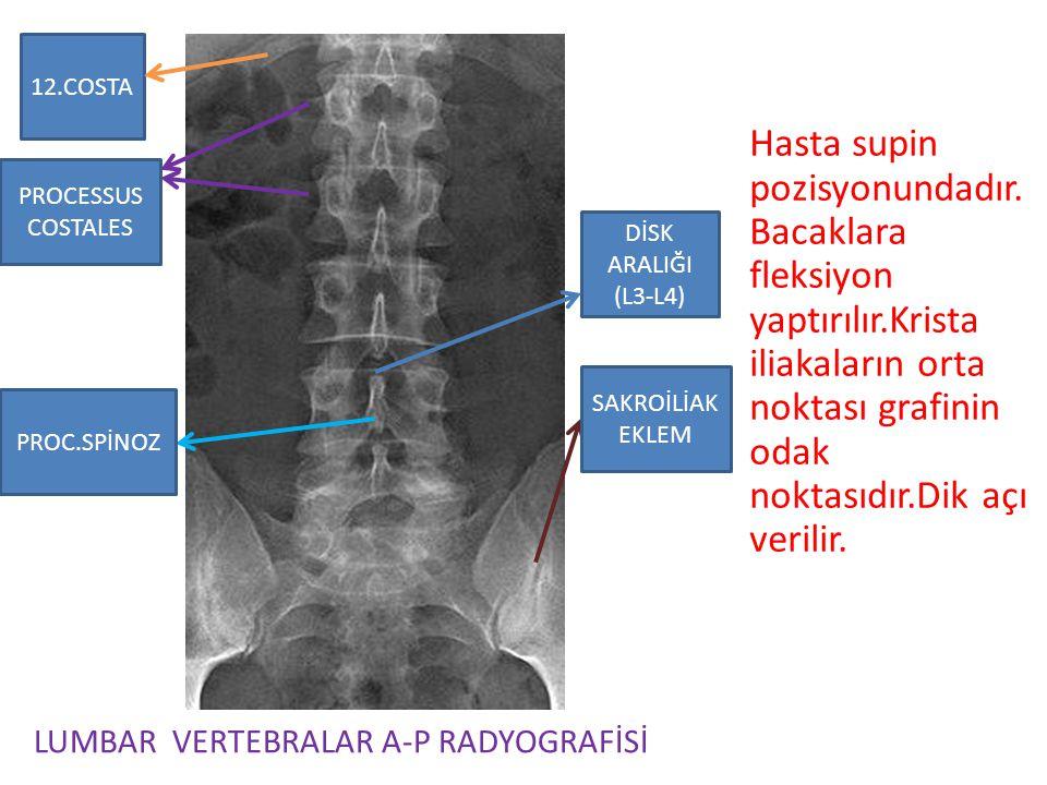 12.COSTA LUMBAR VERTEBRALAR A-P RADYOGRAFİSİ Hasta supin pozisyonundadır. Bacaklara fleksiyon yaptırılır.Krista iliakaların orta noktası grafinin odak