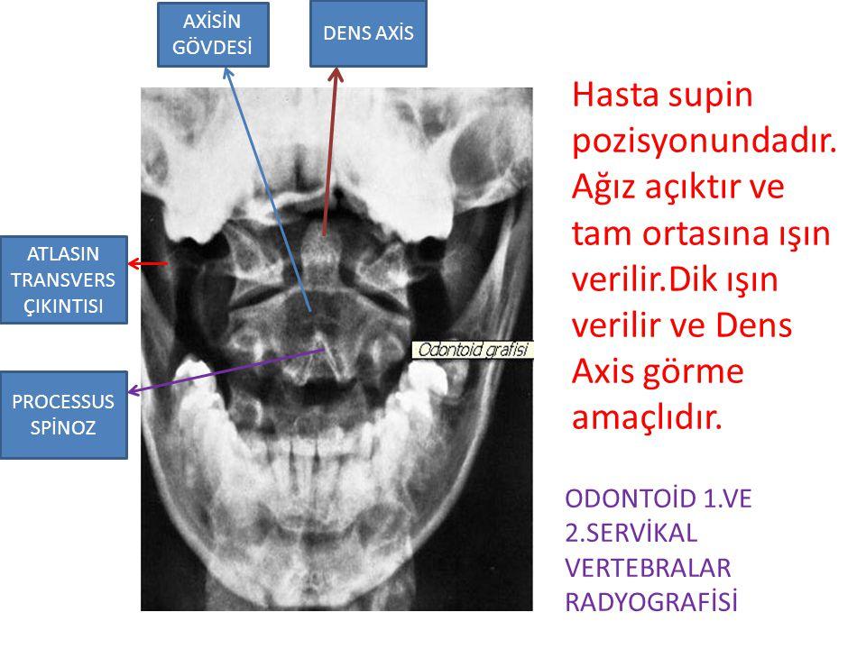ATLASIN TRANSVERS ÇIKINTISI PROCESSUS SPİNOZ AXİSİN GÖVDESİ DENS AXİS Hasta supin pozisyonundadır. Ağız açıktır ve tam ortasına ışın verilir.Dik ışın