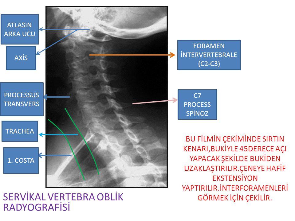 Hasta ayakta lateral pozisyondadır,filme yakın tarafta,kol tam abduksiyona getirilir ve omuz kaldırılır.
