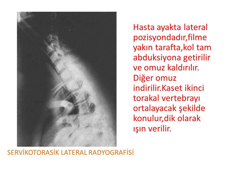 Hasta ayakta lateral pozisyondadır,filme yakın tarafta,kol tam abduksiyona getirilir ve omuz kaldırılır. Diğer omuz indirilir.Kaset ikinci torakal ver