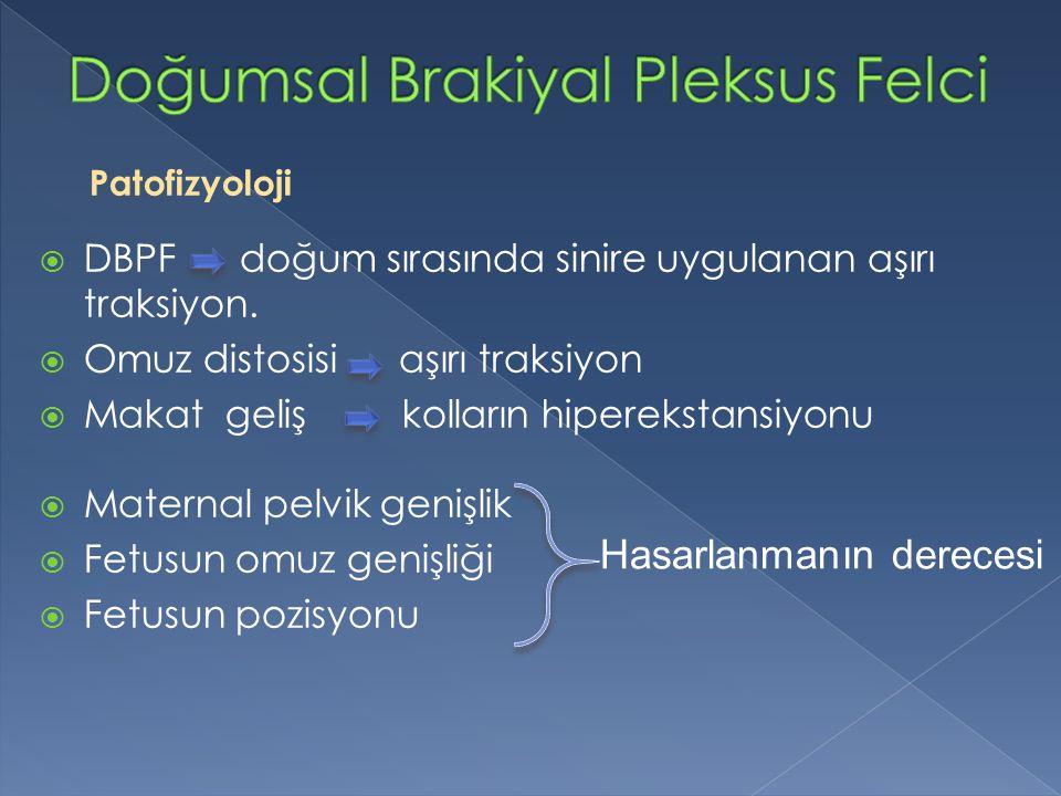 Patofizyoloji  DBPF doğum sırasında sinire uygulanan aşırı traksiyon.