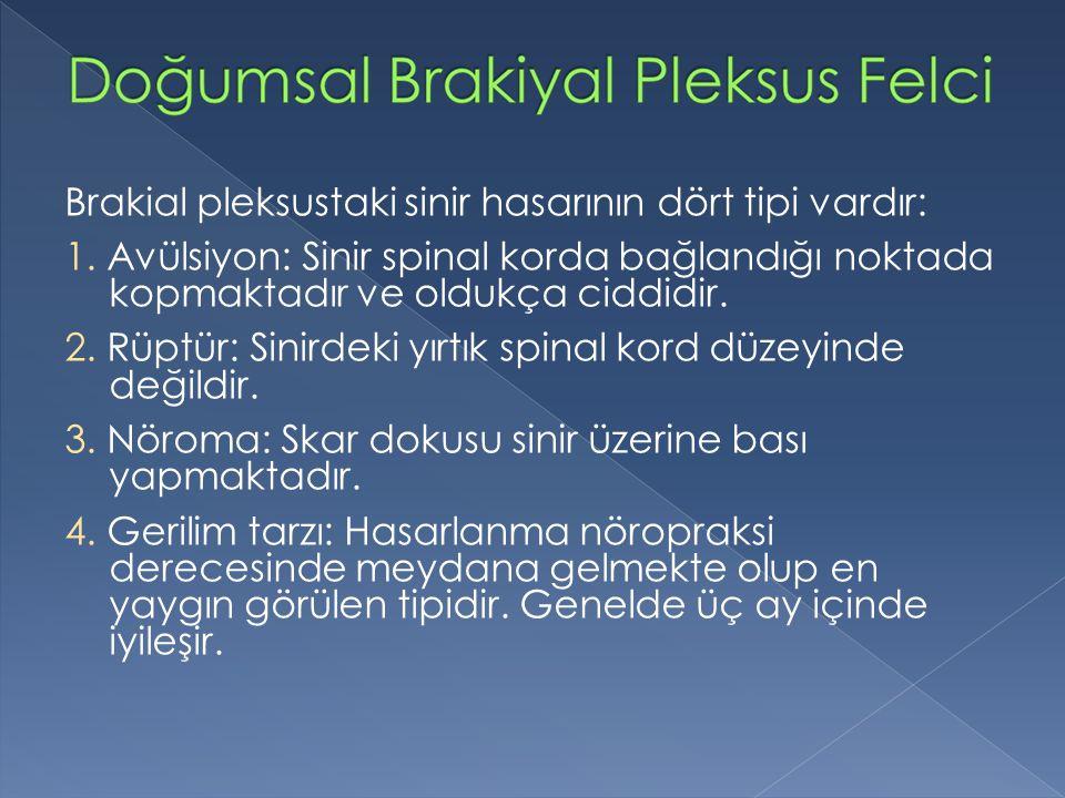 Brakial pleksustaki sinir hasarının dört tipi vardır: 1. Avülsiyon: Sinir spinal korda bağlandığı noktada kopmaktadır ve oldukça ciddidir. 2. Rüptür: