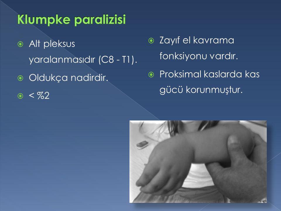  Alt pleksus yaralanmasıdır (C8 - T1).  Oldukça nadirdir.  < %2  Zayıf el kavrama fonksiyonu vardır.  Proksimal kaslarda kas gücü korunmuştur.