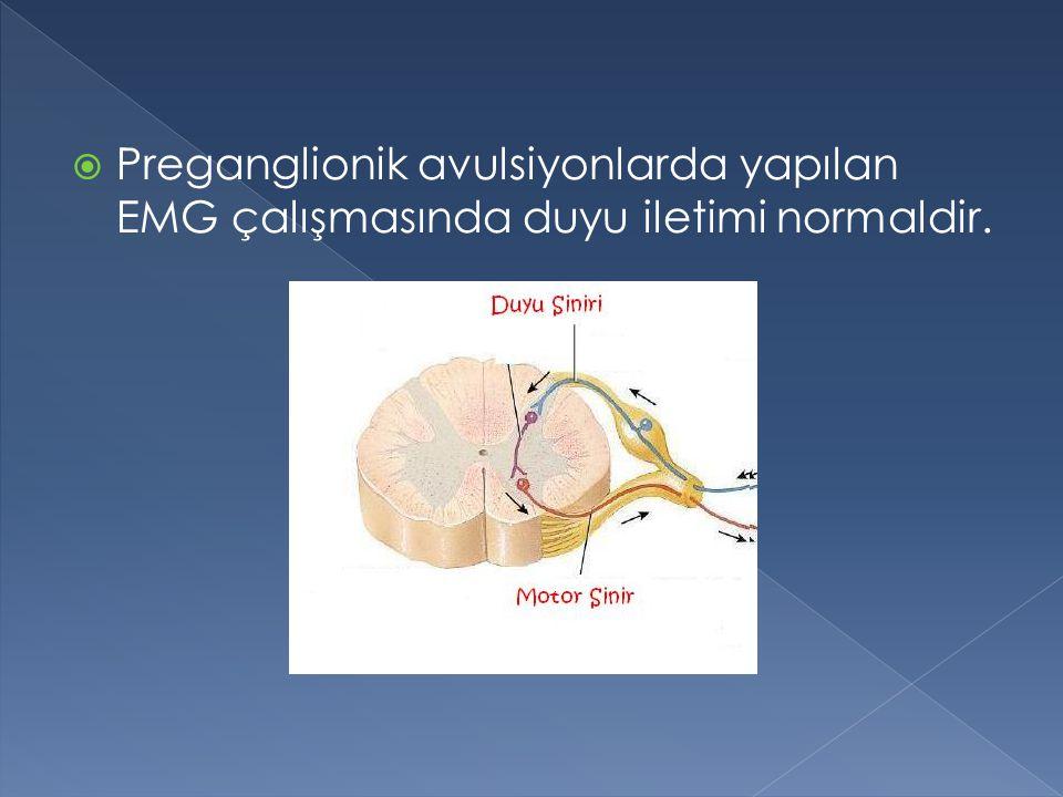  Preganglionik avulsiyonlarda yapılan EMG çalışmasında duyu iletimi normaldir.