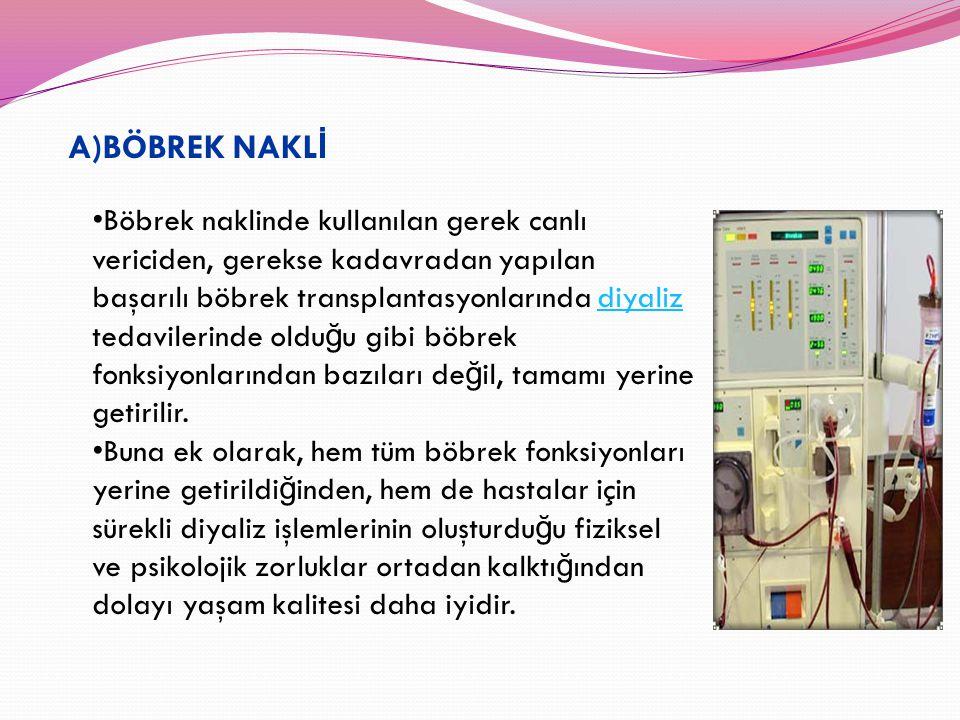A)BÖBREK NAKL İ Böbrek naklinde kullanılan gerek canlı vericiden, gerekse kadavradan yapılan başarılı böbrek transplantasyonlarında diyaliz tedavileri