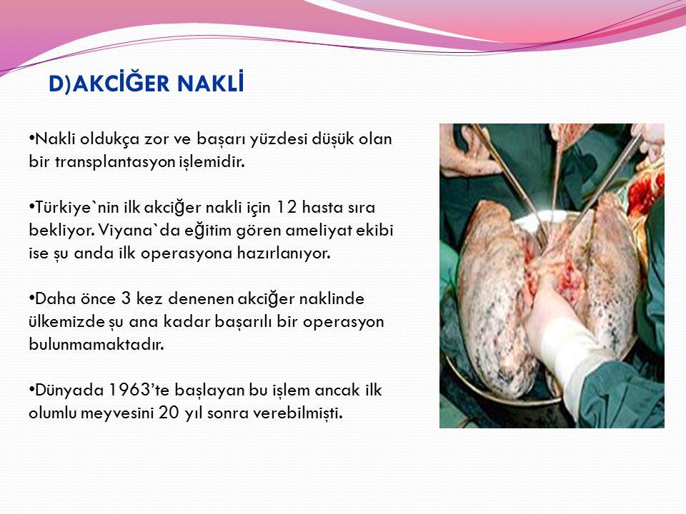 D)AKC İĞ ER NAKL İ Nakli oldukça zor ve başarı yüzdesi düşük olan bir transplantasyon işlemidir. Türkiye`nin ilk akci ğ er nakli için 12 hasta sıra be