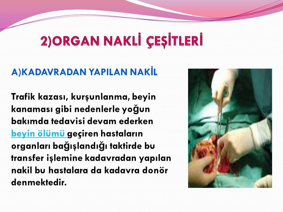 Türkiye'de sadece böbrek nakli bekleyen 30 bin, di ğ er organları bekleyen onbinlerce hasta var.