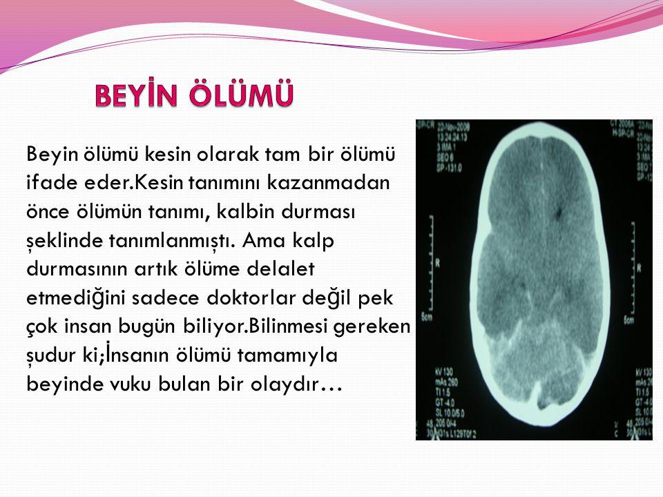 TONB VER İ LER İ NE GÖRE TÜRK İ YE'DE TRANSPLANTASYONUN GEL İ Ş İ M İ Türkiye'de organ nakli 1969 yılında İ stanbul ve Ankara'da gerçekleştirilen iki kalp nakli ile başlar.