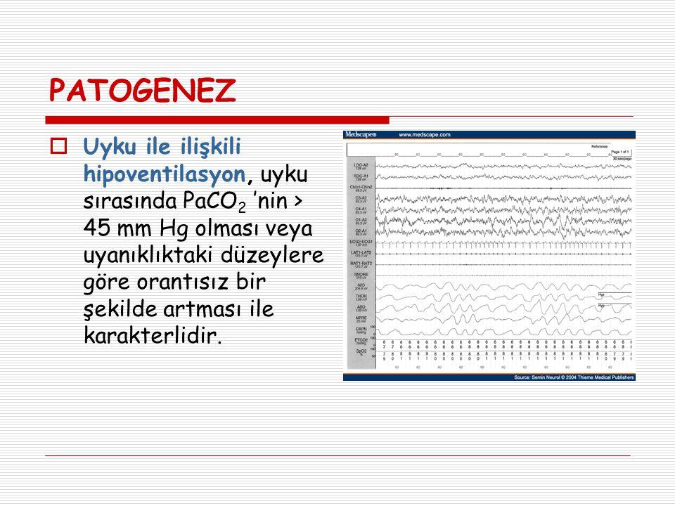  Uyku esnasında, uyanıkken supin pozisyonda bakılan PaCO 2 değerine göre ≥ 10 mmHg artış varsa durum hipoventilasyon olarak skorlanır.