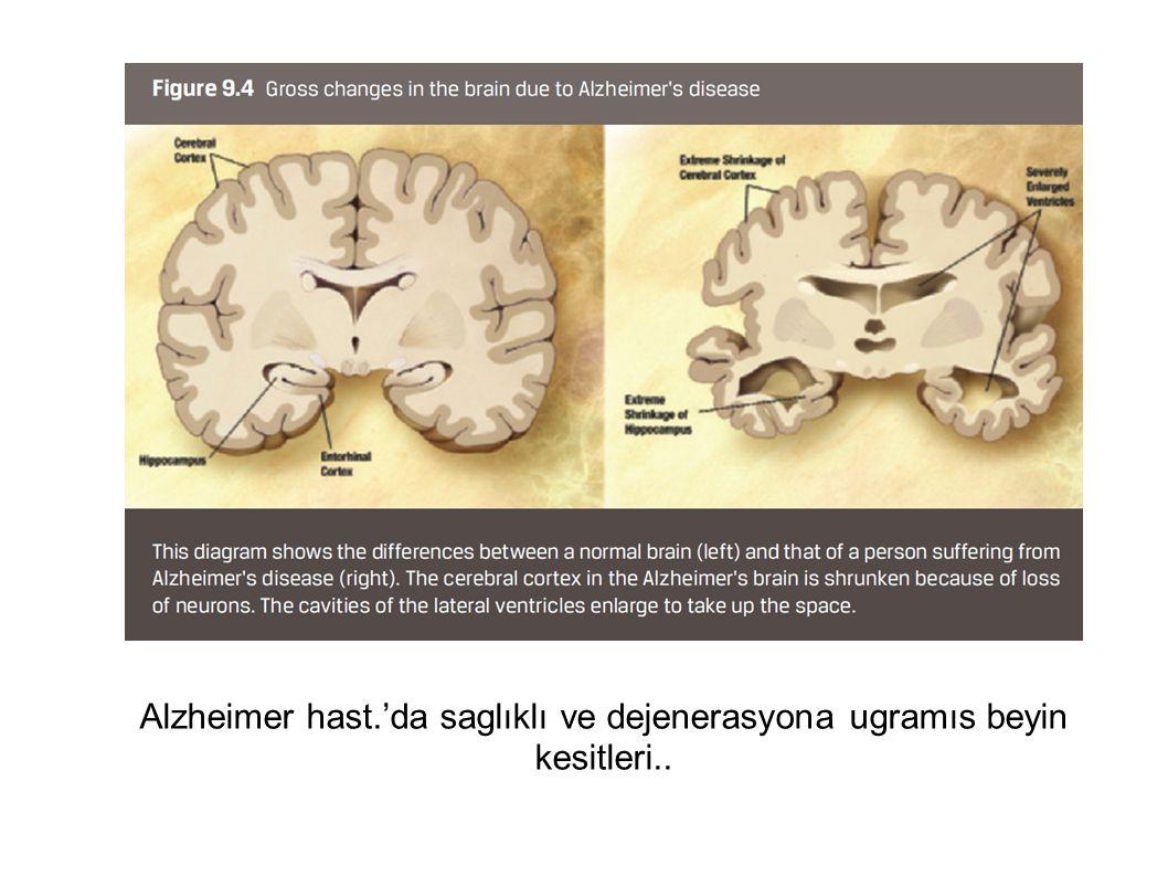 Alzheimer hast.'da saglıklı ve dejenerasyona ugramıs beyin kesitleri..