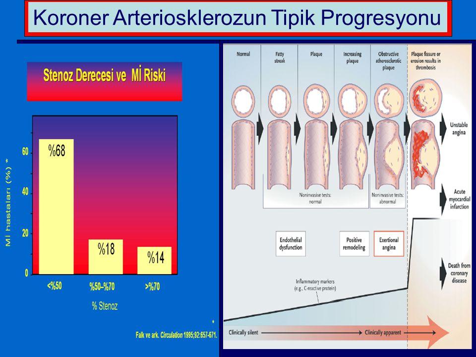 Koroner Arteriosklerozun Tipik Progresyonu
