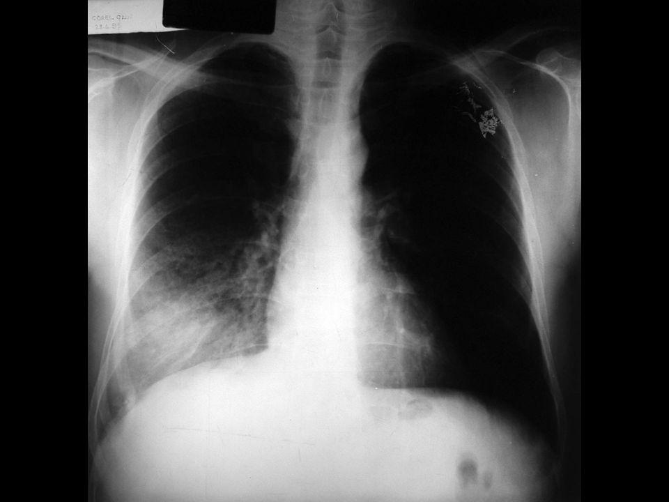 Hemogram: Lök: 18400 Nötrofil: %76 Lenfo: %22Mono: %2 Eritrosit: 4.600.000 Hb: %13.4gHt: %41