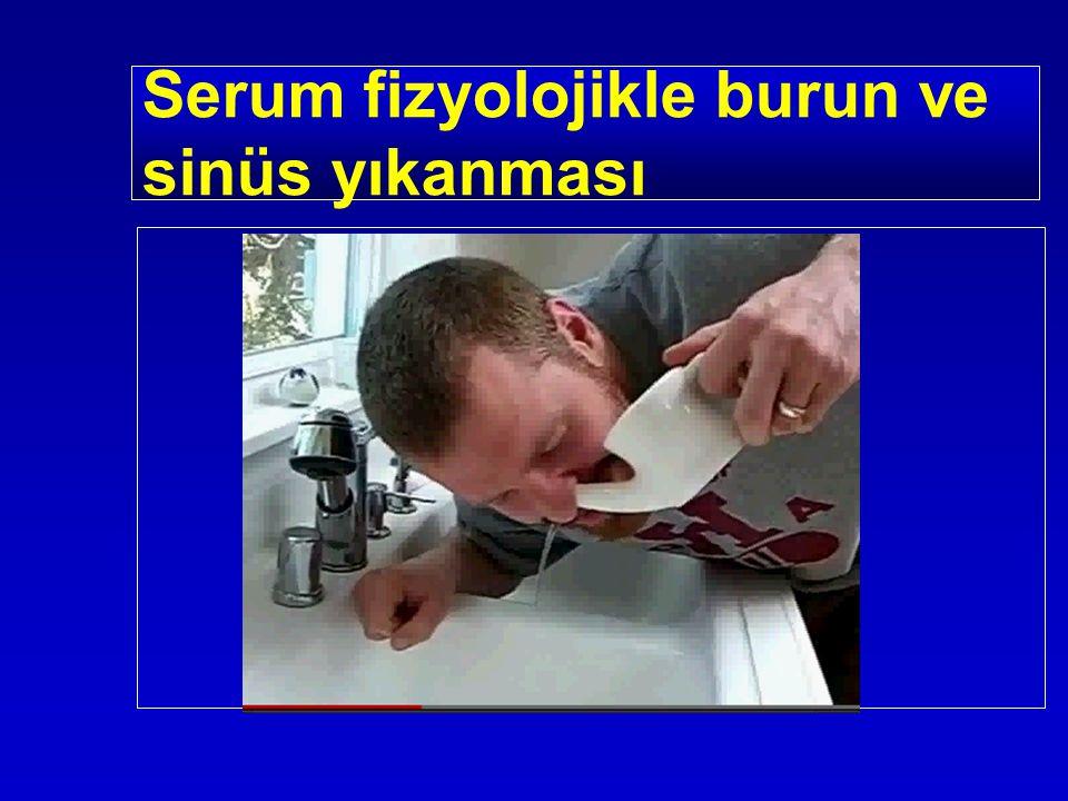 Serum fizyolojikle burun ve sinüs yıkanması
