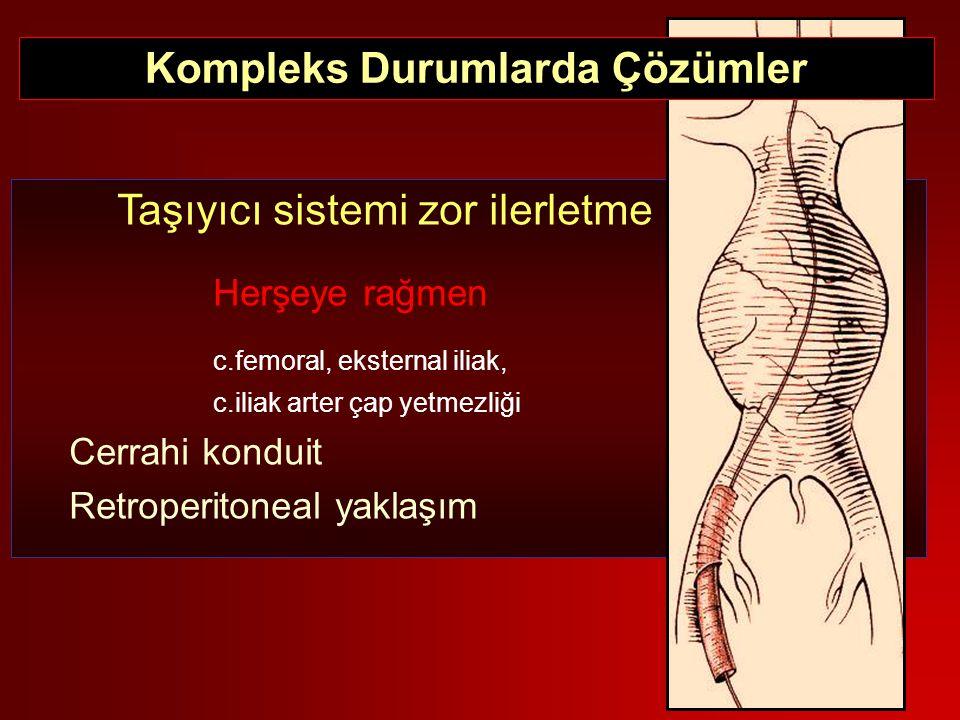 Taşıyıcı sistemi zor ilerletme Herşeye rağmen c.femoral, eksternal iliak, c.iliak arter çap yetmezliği Cerrahi konduit Retroperitoneal yaklaşım Komple