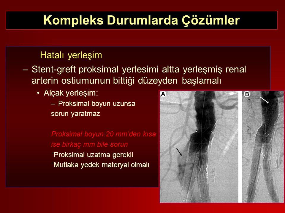 Hatalı yerleşim –Stent-greft proksimal yerlesimi altta yerleşmiş renal arterin ostiumunun bittiği düzeyden başlamalı Alçak yerleşim: –Proksimal boyun