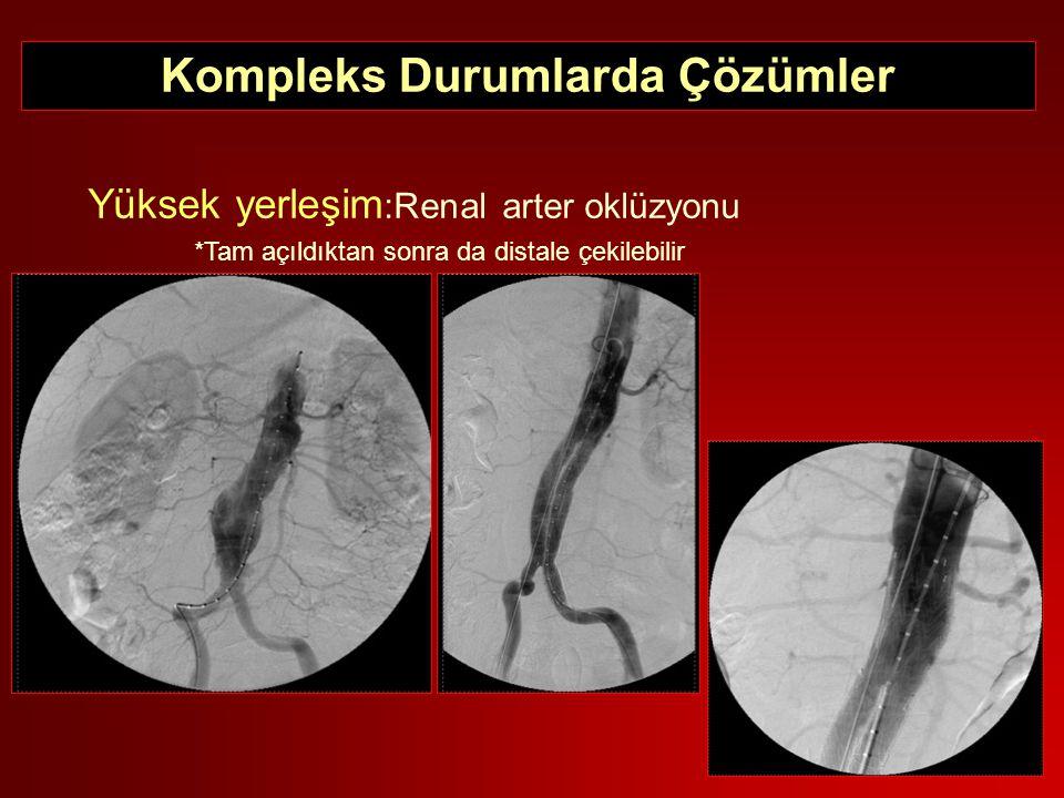 Yüksek yerleşim :Renal arter oklüzyonu *Tam açıldıktan sonra da distale çekilebilir