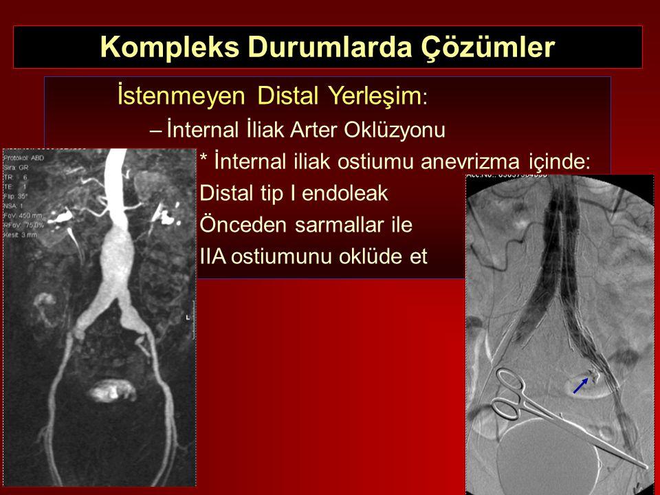 İstenmeyen Distal Yerleşim : –İnternal İliak Arter Oklüzyonu * İnternal iliak ostiumu anevrizma içinde: Distal tip I endoleak Önceden sarmallar ile II