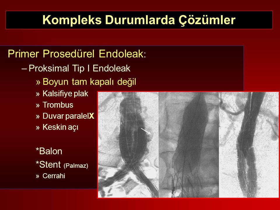 Primer Prosedürel Endoleak : –Proksimal Tip I Endoleak »Boyun tam kapalı değil »Kalsifiye plak »Trombus »Duvar paralelX »Keskin açı *Balon *Stent (Pal
