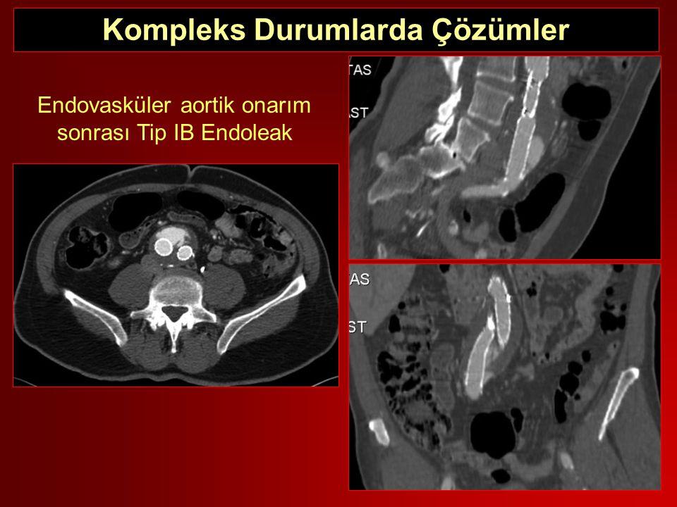 Kompleks Durumlarda Çözümler Endovasküler aortik onarım sonrası Tip IB Endoleak