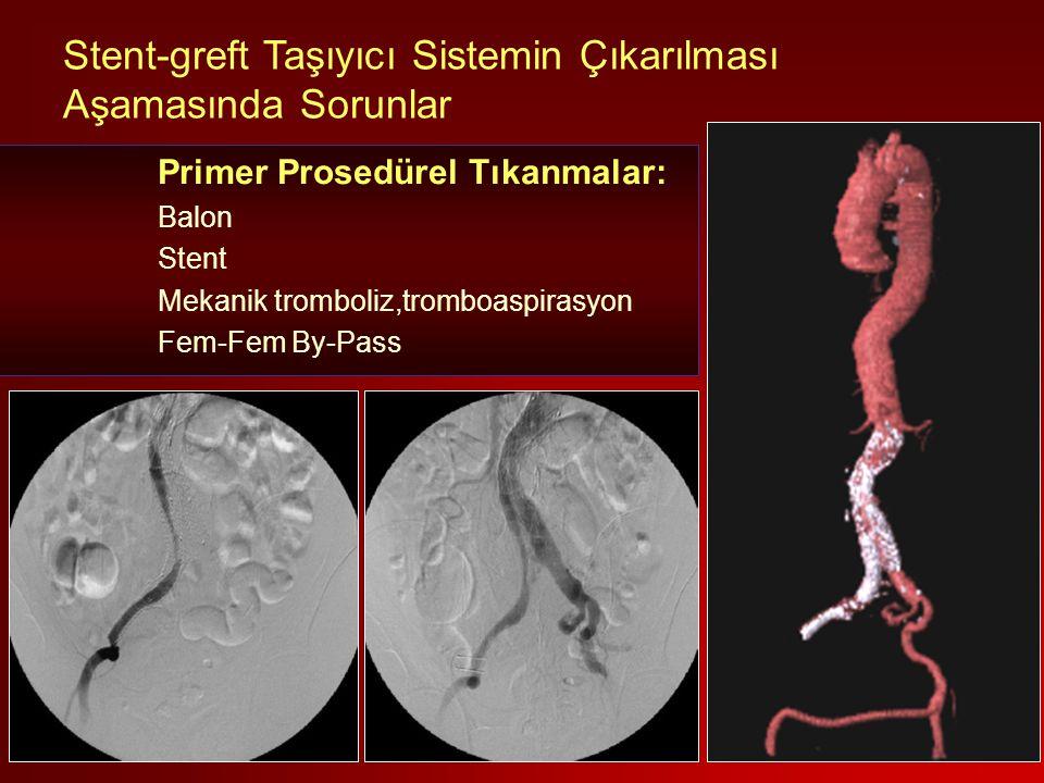 Stent-greft Taşıyıcı Sistemin Çıkarılması Aşamasında Sorunlar Primer Prosedürel Tıkanmalar: Balon Stent Mekanik tromboliz,tromboaspirasyon Fem-Fem By-