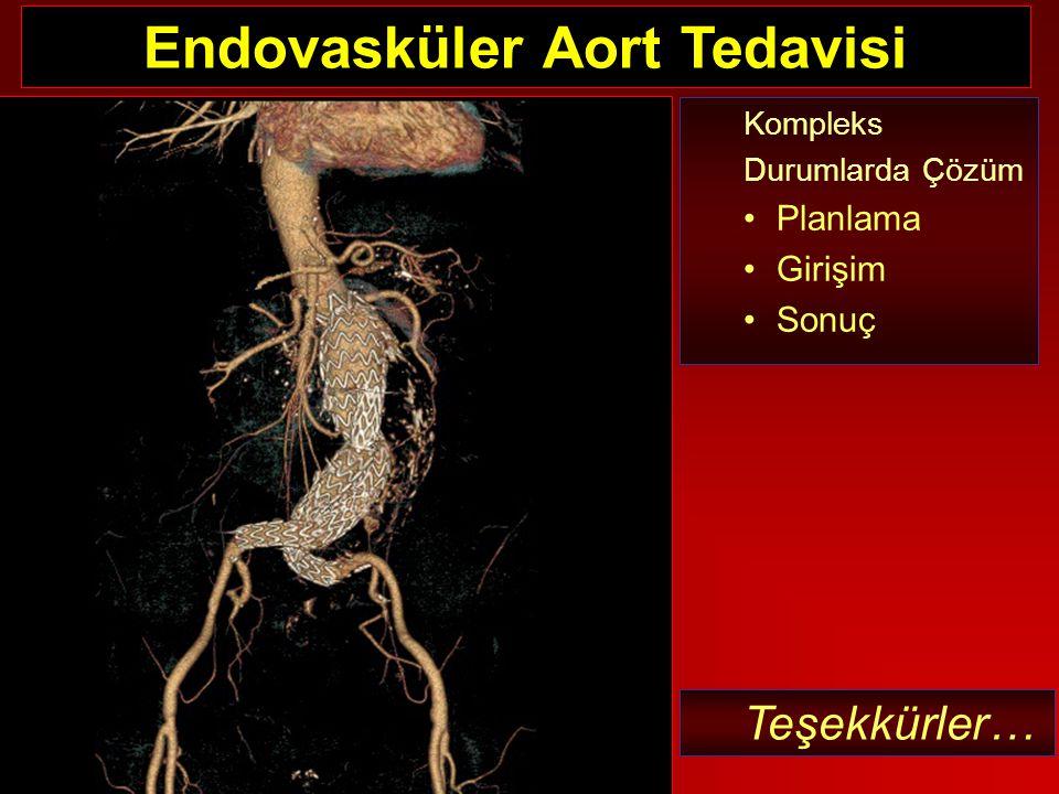 Kompleks Durumlarda Çözüm Planlama Girişim Sonuç Teşekkürler… Endovasküler Aort Tedavisi
