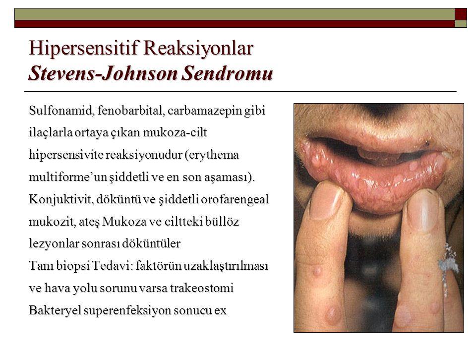 Hipersensitif Reaksiyonlar Stevens-Johnson Sendromu Sulfonamid, fenobarbital, carbamazepin gibi ilaçlarla ortaya çıkan mukoza-cilt hipersensivite reak