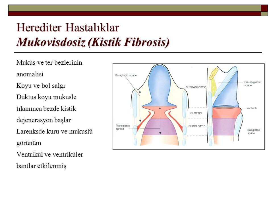 Herediter Hastalıklar Mukovisdosiz (Kistik Fibrosis) Muküs ve ter bezlerinin anomalisi Koyu ve bol salgı Duktus koyu mukusle tıkanınca bezde kistik de
