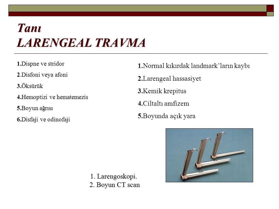 Tanı LARENGEAL TRAVMA 1.Dispne ve stridor 2.Disfoni veya afoni 3.Öksürük 4.Hemoptizi ve hematemezis 5.Boyun ağrısı 6.Disfaji ve odinofaji 1.Normal kık