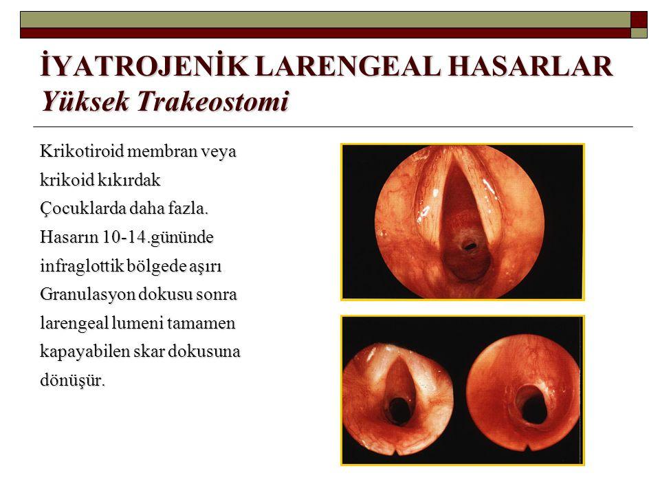 İYATROJENİK LARENGEAL HASARLAR Yüksek Trakeostomi Krikotiroid membran veya krikoid kıkırdak Çocuklarda daha fazla. Hasarın 10-14.gününde infraglottik