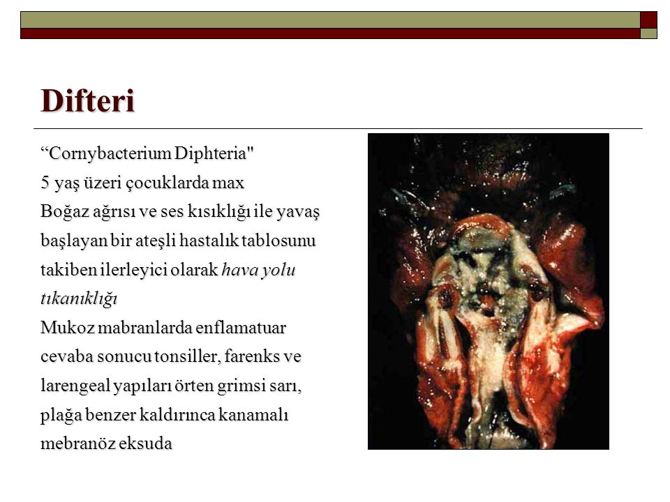 "Difteri ""Cornybacterium Diphteria"
