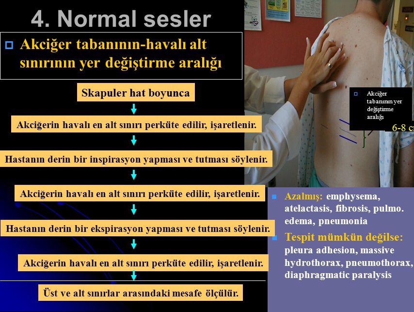 4. Normal sesler   Akciğer tabanının-havalı alt sınırının yer değiştirme aralığı Azalmış: emphysema, atelactasis, fibrosis, pulmo. edema, pneumonia