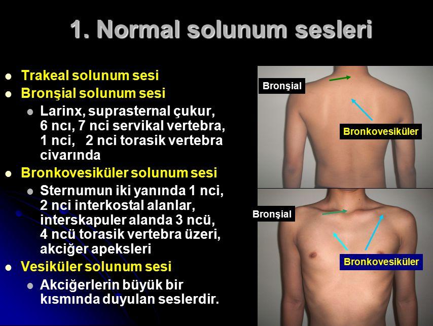 Trakeal solunum sesi Bronşial solunum sesi Larinx, suprasternal çukur, 6 ncı, 7 nci servikal vertebra, 1 nci, 2 nci torasik vertebra civarında Bronkovesiküler solunum sesi Sternumun iki yanında 1 nci, 2 nci interkostal alanlar, interskapuler alanda 3 ncü, 4 ncü torasik vertebra üzeri, akciğer apeksleri Vesiküler solunum sesi Akciğerlerin büyük bir kısmında duyulan seslerdir.