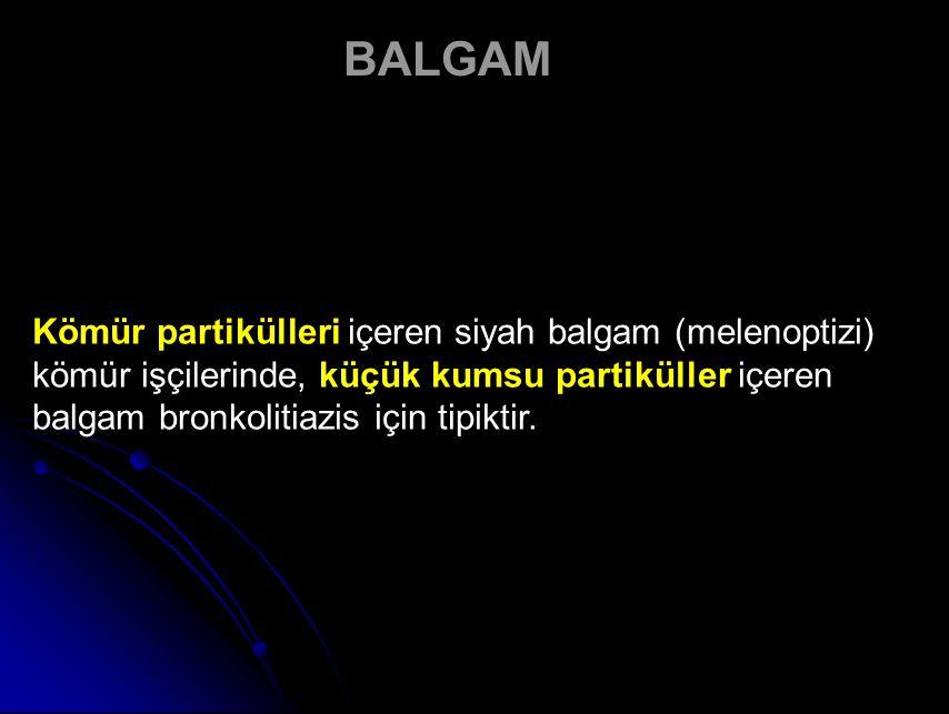 Kömür partikülleri içeren siyah balgam (melenoptizi) kömür işçilerinde, küçük kumsu partiküller içeren balgam bronkolitiazis için tipiktir.